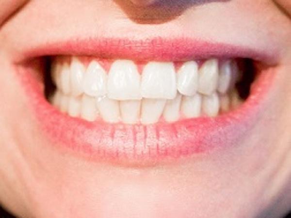 Tout sur le blanchiment des dents
