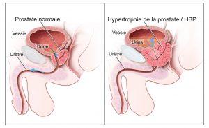 cancer de la prostate et traitement