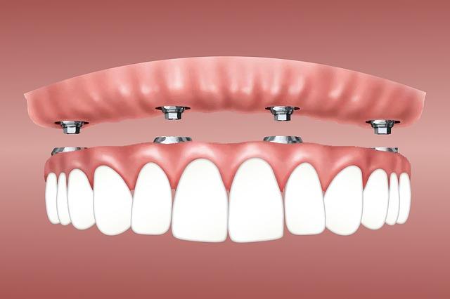 Implant dentaires : quels sont ses avantages ?