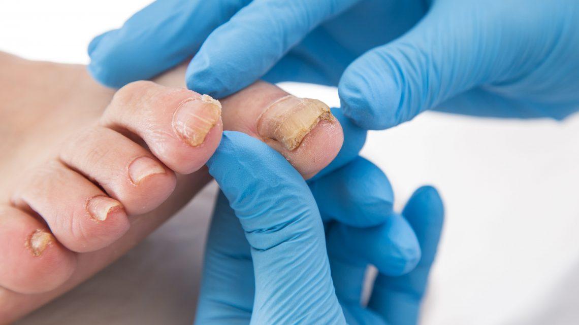 La mycose de l'ongle, une infection à traiter de manière rigoureuse