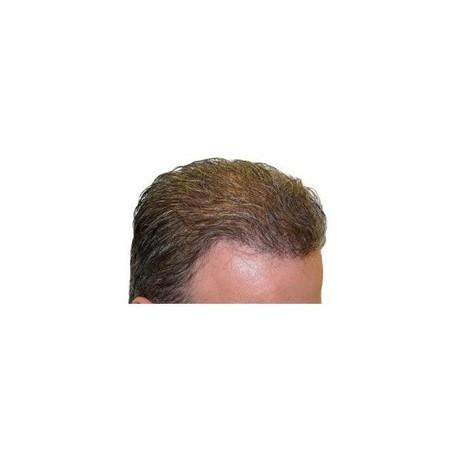 Prothèses capillaires, pour des cheveux parfaits