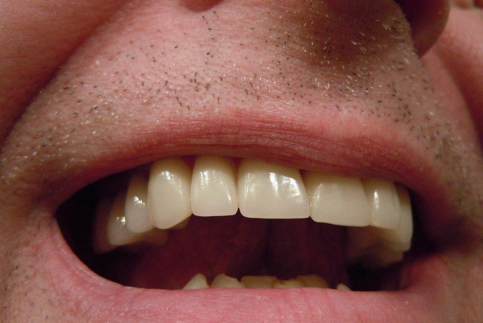 Les remèdes naturels contre la rage de dents