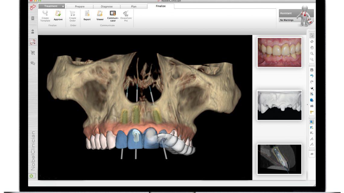 Implant dentaire avec guidage chirurgical numérique