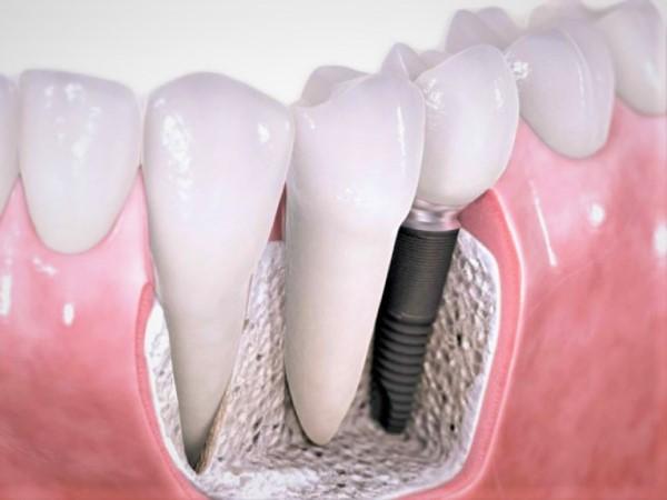 Souriezsans complexe grâce aux implants dentaires!