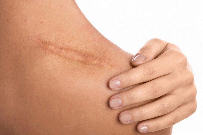 Comment améliorer une cicatrice ?
