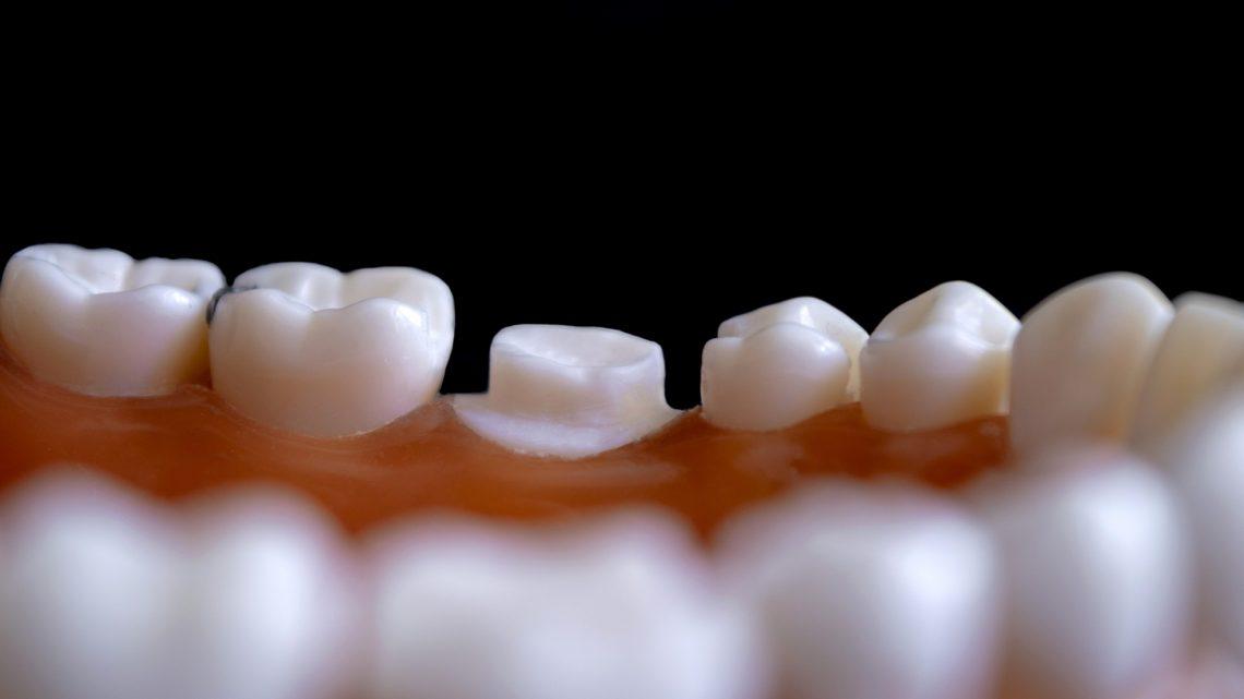 Les 4 aliments qui détruisent vos dents