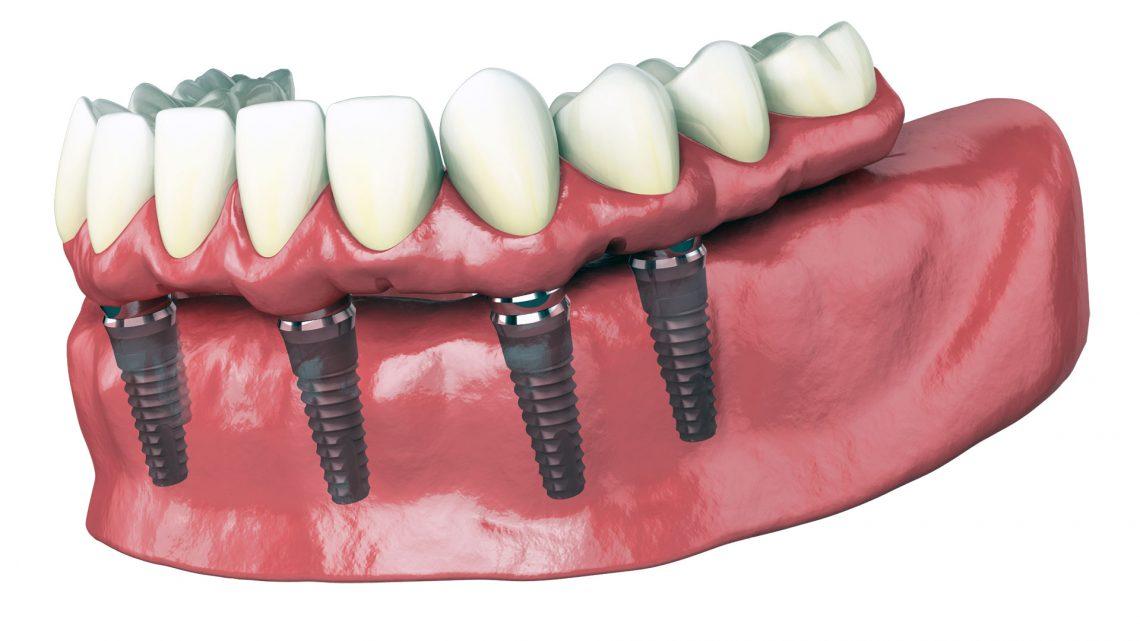 Quelle prothèse dentaire choisir pour un remplacement de plusieurs dents manquantes ?