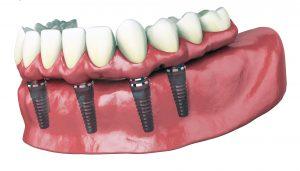 Les solutions pour remplacer une ou plusieurs dents par une prothèse dentaire