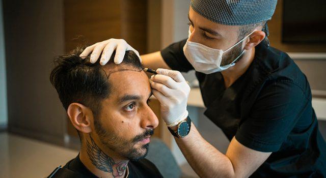 Les éléments qui influent le prix de greffe de cheveux