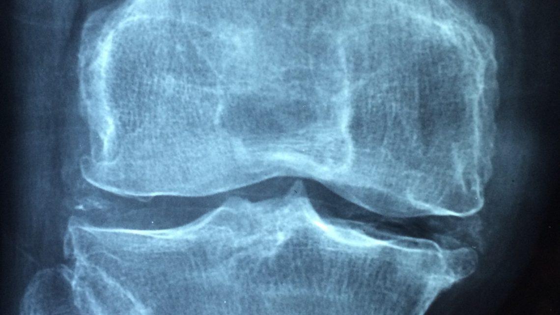 Arthrose des mains: quelques traitements non médicamenteux